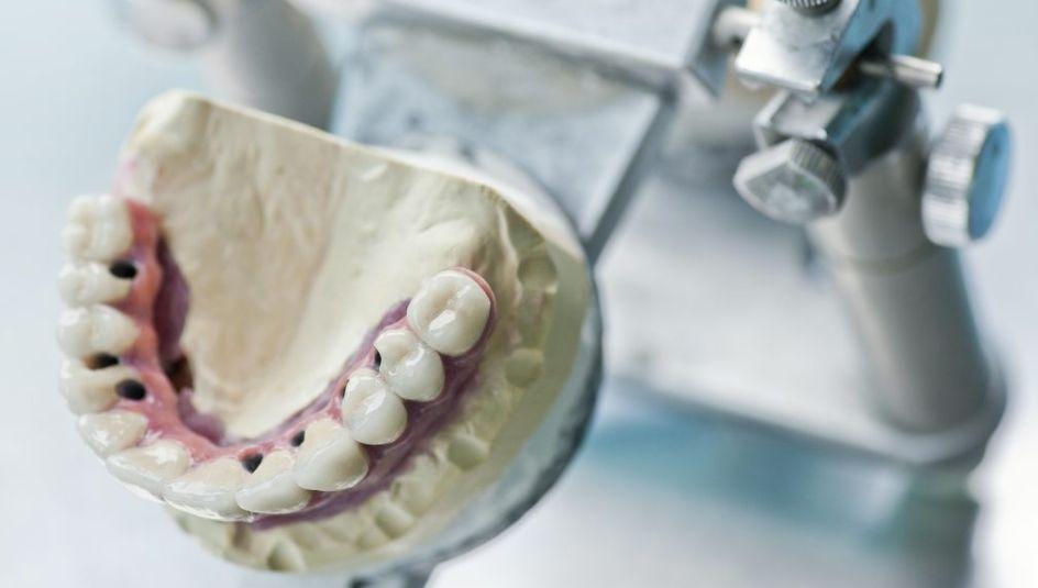protezirovanie-zubov2